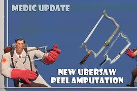 Peel amputation for medic