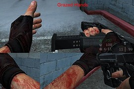 Grazed_Hands